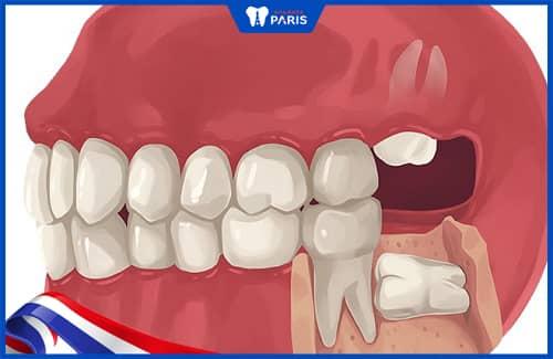 nguyên nhân răng khôn mọc lệch