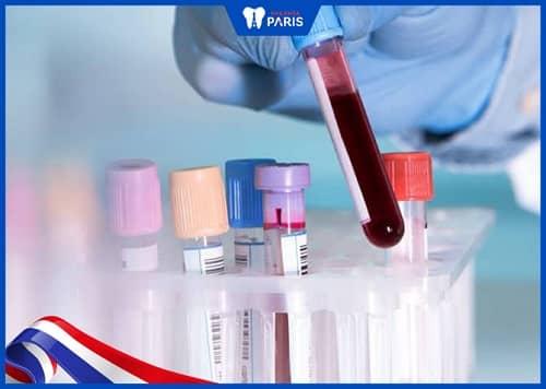 xét nghiệm máu nhổ răng khôn