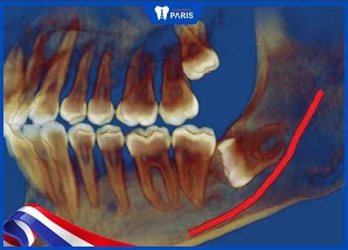 nhổ răng số 8 có ảnh hưởng thần kinh không