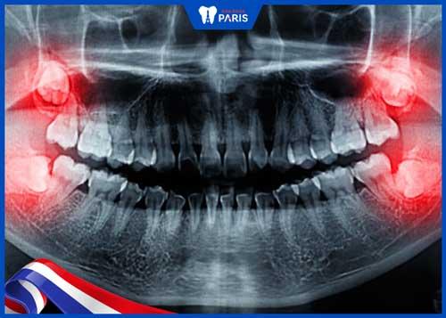 Nhổ răng khôn bao lâu lành