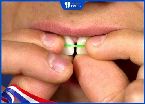 Niềng răng bằng dây thun tại nhà