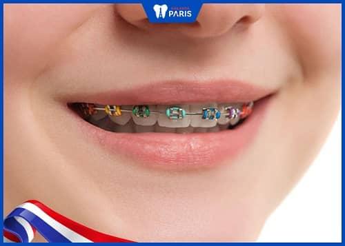 niềng răng 1 hàm dùng khí cụ nào