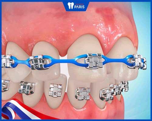 niềng răng nhổ mấy răng