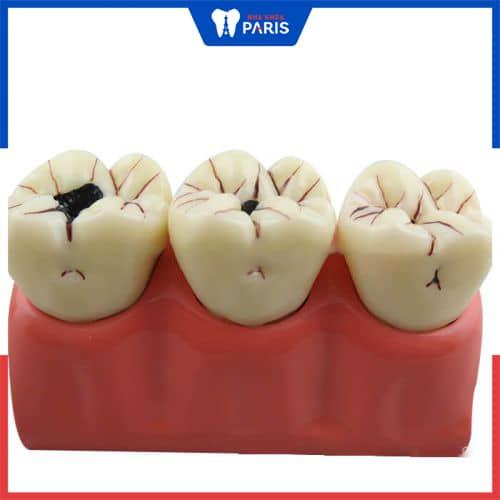 răng khôn bị sâu
