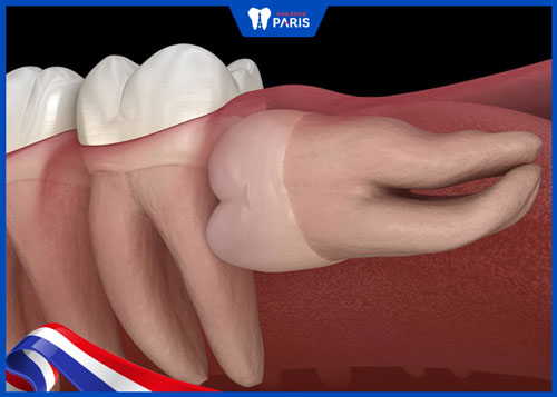 Răng khôn mọc lệch 90 độ