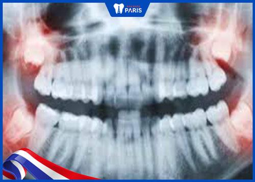 Răng khôn mọc lệch là gì?