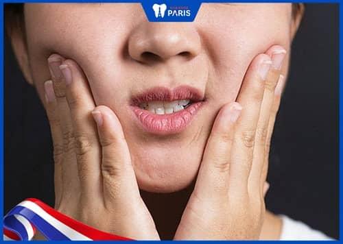 răng trong cùng mọc lệch gây cứng hàm