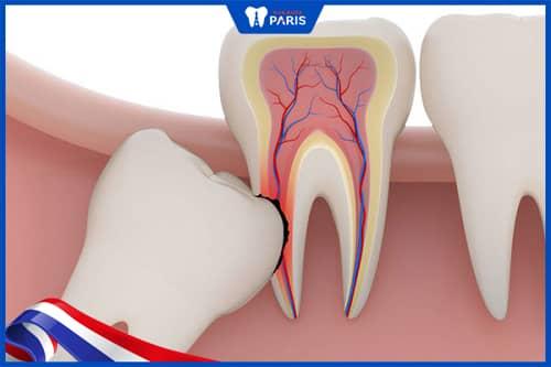 răng khôn mọc lệch làm hỏng răng số 7