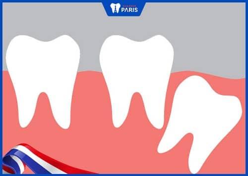 răng số 8 mọc lệch ra sau