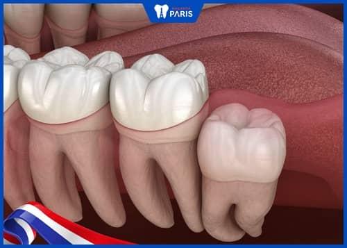 răng số 8 mọc lệch nhưng không trồi lên