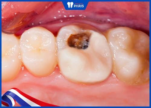 răng sâu nặng có niềng răng được không