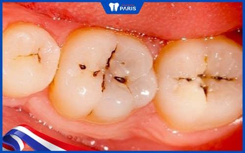 răng sâu nhẹ có niềng răng được không