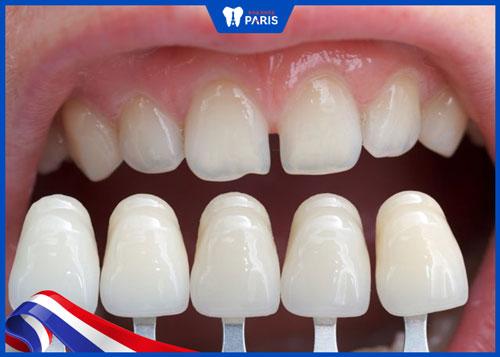 Răng sứ màu trắng đục