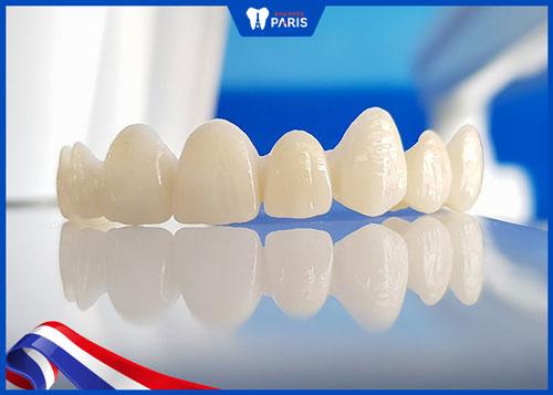 Răng toàn sứ DDBIO là gì