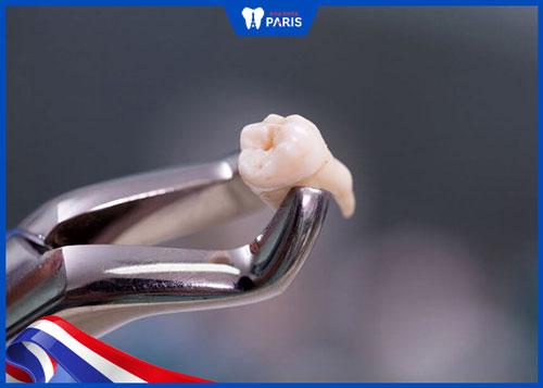 nhổ răng khôn sau bao lâu thì lành