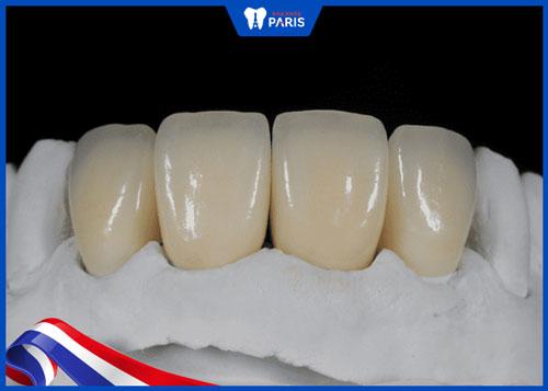 răng sứ ddbio có tốt không