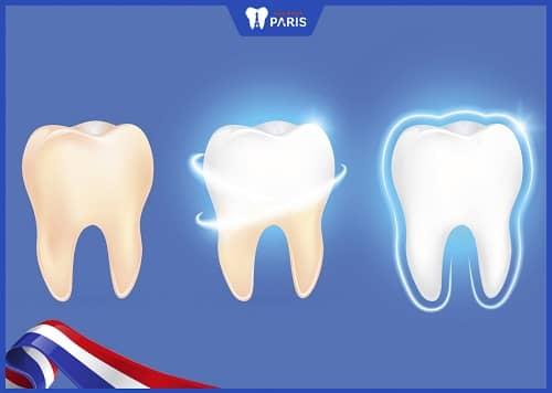 công nghệ tráng men răng