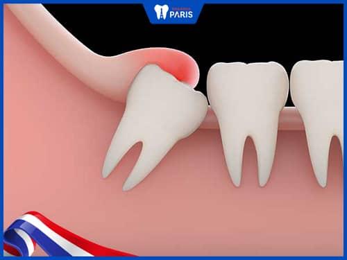 viêm lợi trùm do răng khôn mọc lệch