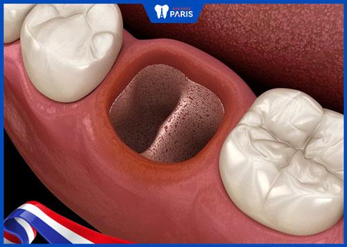 Viêm xương ổ răng biến chứng sau khi nhổ răng khôn