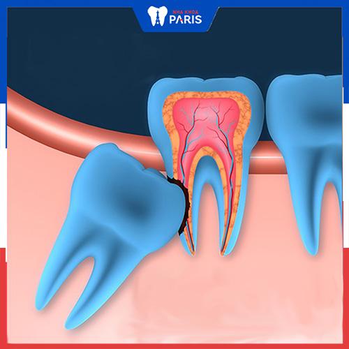 chi phí nhổ răng phụ thuộc yếu tố nào