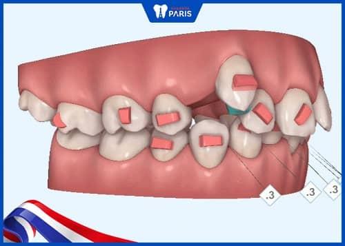niềng răng trong suốt có phải nhổ răng khôn không?