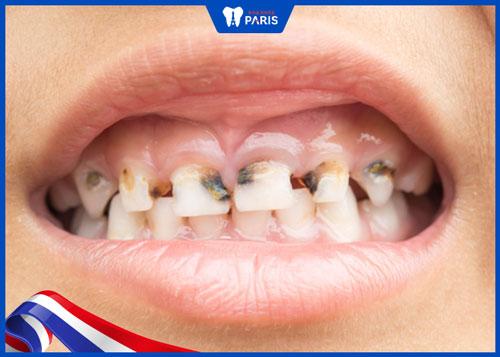 hình ảnh sâu răng nặng