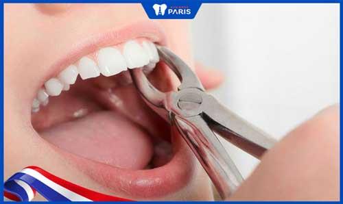Đau răng có nên nhổ
