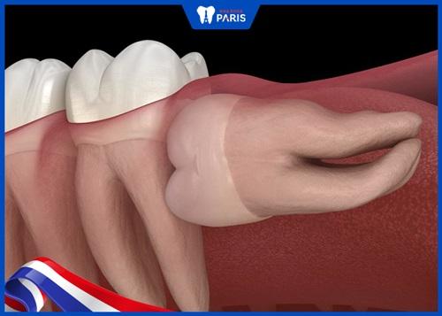 Giá dịch vụ nhổ răng khôn