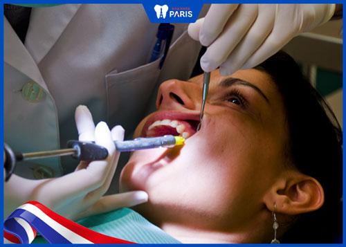 lợi ích khi nhổ 2 hoặc 4 răng khôn cùng lúc