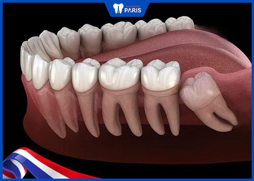 Quy trình nhổ răng khôn mọc lệch