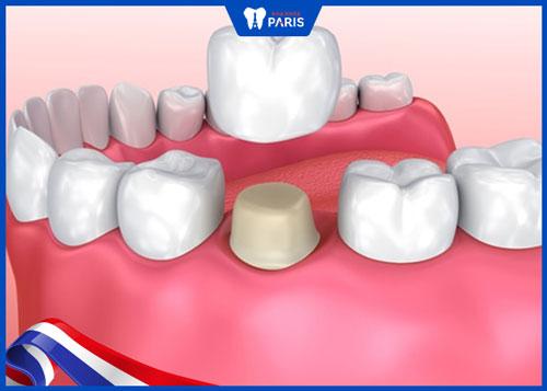 Trám răng inlay hay bọc sứ