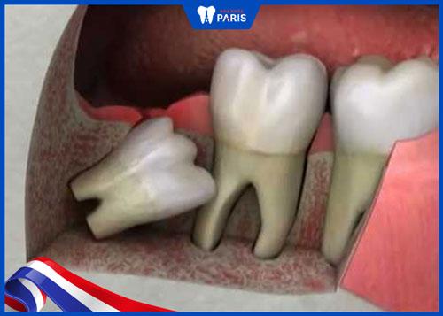 Nhổ răng khôn bị sốt