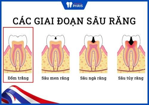 tại sao răng bị sâu nặng