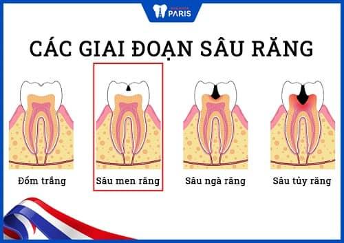 sâu răng nặng là do đâu