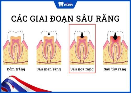 răng sâu nặng nguyên nhân từ đâu