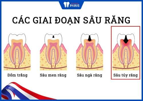 lý do khiến răng hàm bị sâu nặng