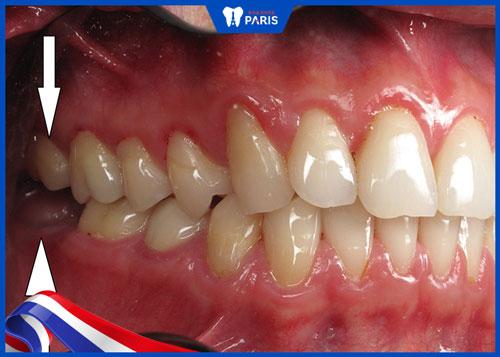 Nhổ 2 răng khôn dưới cùng lúc