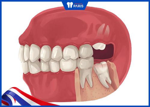Có nên nhổ 4 răng khôn cùng lúc