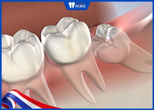 Nhổ răng khôn mọc lệch hàm dưới