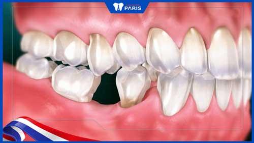 nhổ răng số 6 có đau không