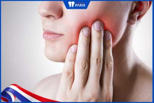 Nhức răng cấm có nên nhổ không