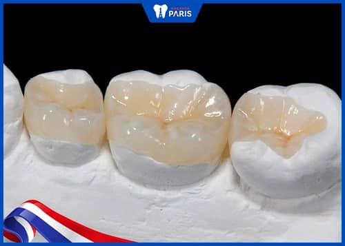 nhược điểm của hàn răng inlay/onlay