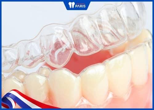 niềng răng 3d clear và invisalign