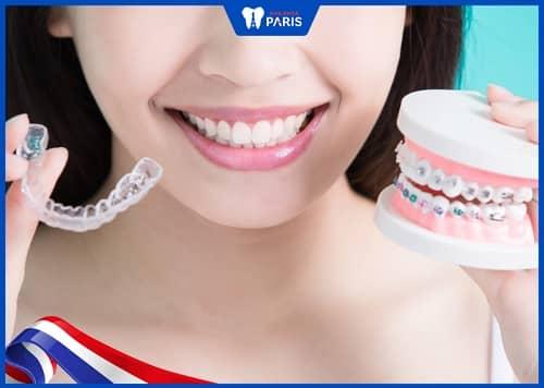 có nên niềng răng invisalign không