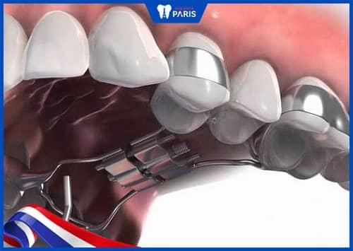 làm sao để không nhổ răng khi nẹp răng trong suốt
