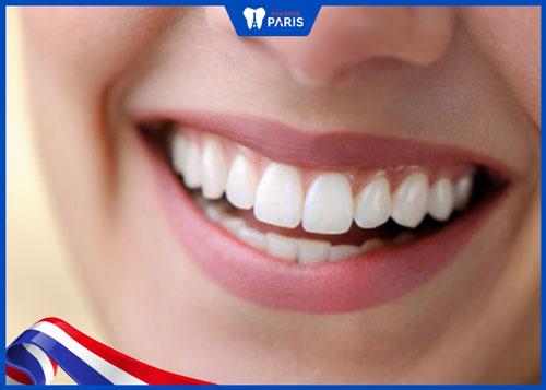 cách hạn chế răng bị sâu nặng