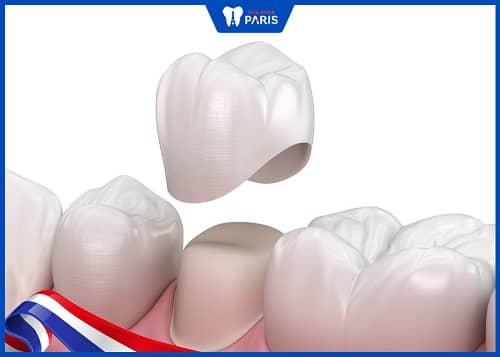 răng sâu nặng có nên trám không