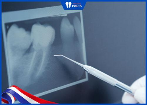 Quy trình nhổ răng số 8