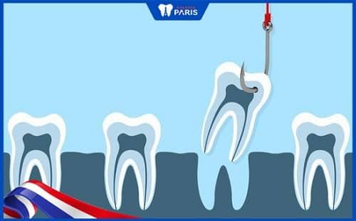 nhổ chân răng số 6