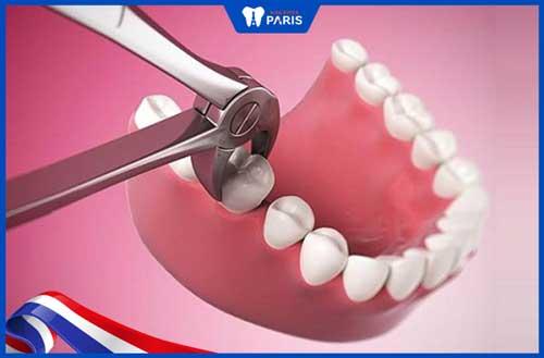 nhổ răng hàm số 6 có nguy hiểm không